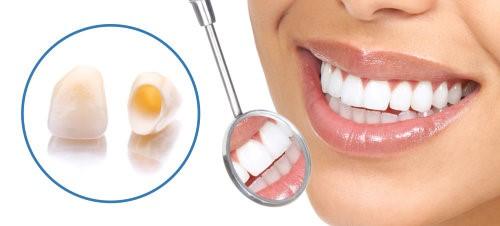 0 - مراحل آماده سازی روکش دندان و مراقبت از آن