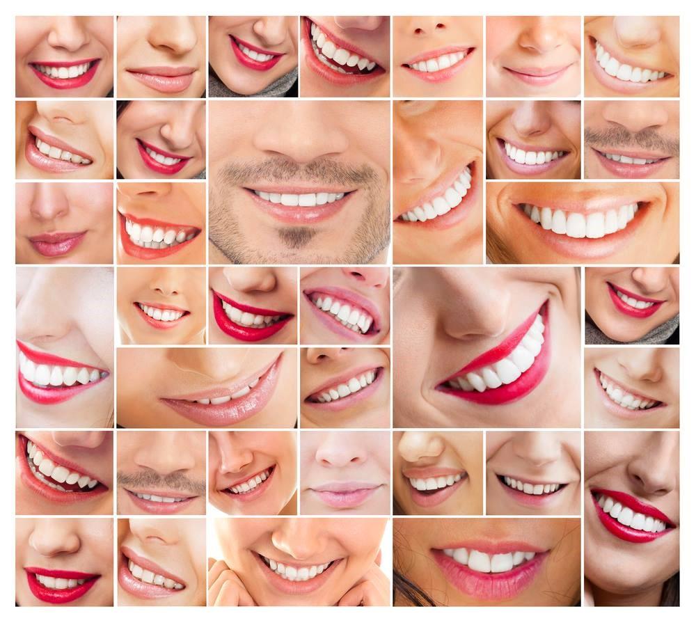 0 1 - اصلاح طرح لبخند