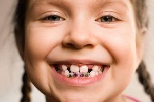 0 1 - رشد نکردن دندان دائمی در کودکان