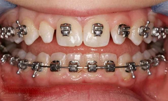 دندان لترال میخی شکل