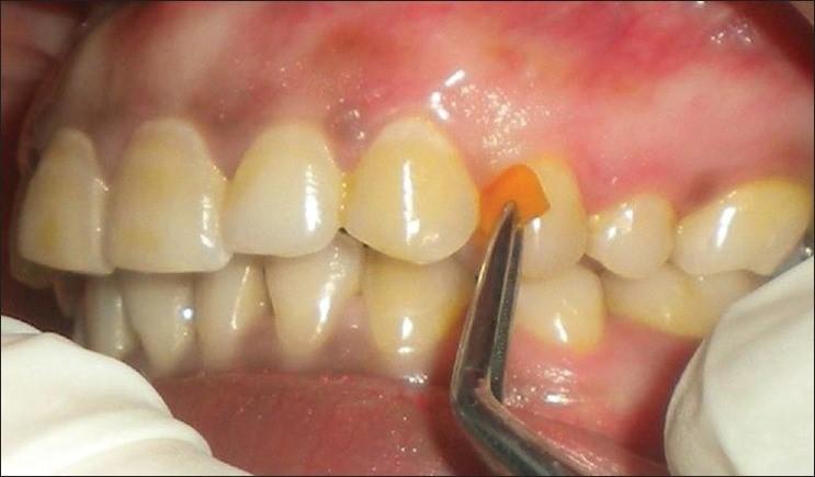 آشنایی با انواع دارو های دندانپزشکی