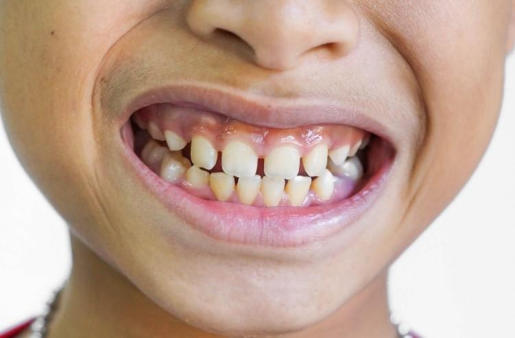 فاصلهی بین دندانها