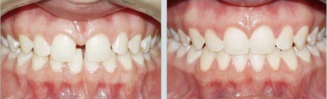 10 1 - دیاستم یا فاصله بین دندانها