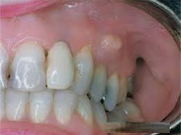 انواع برآمدگیهای شبیه غده دهانی