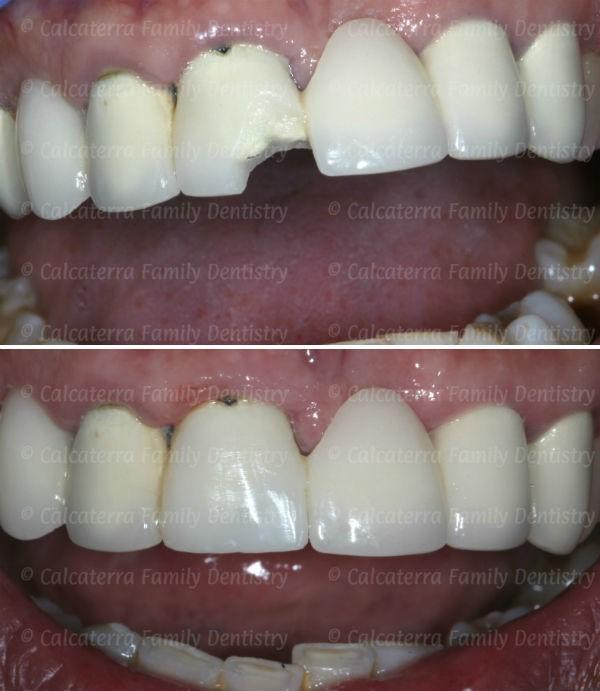 مراحل آماده سازی روکش دندان و مراقبت از آن