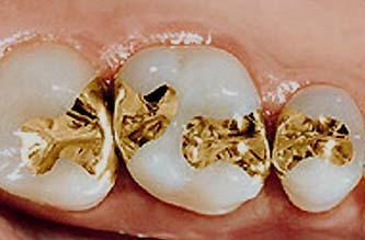 پر کردن حفره دندان