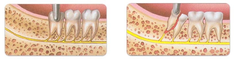 فرایند کشیدن دندان