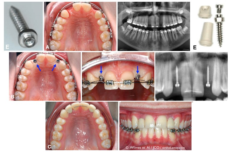رشد نکردن دندان دائمی در کودکان