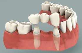 جایگزین برای دندان از دست رفته