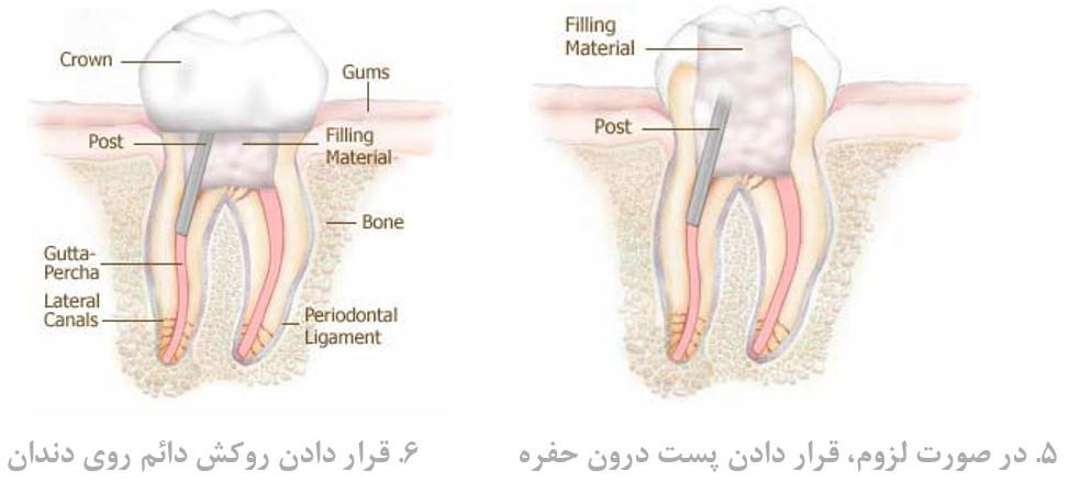 درمان ریشه (عصب کشی)