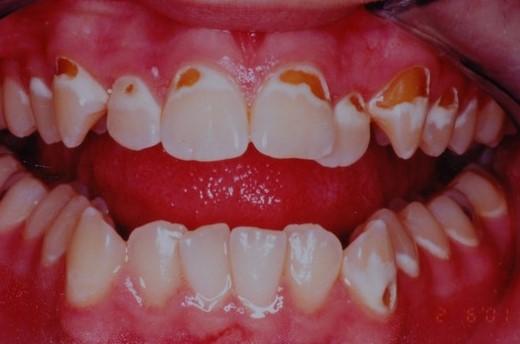 پوکی استخوان و سلامت دهان و دندان