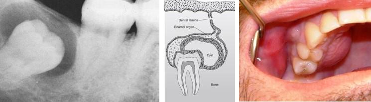 کیست دندان و انواع آن