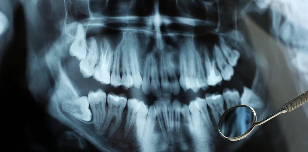 0 1 - رادیوگرافی در دندانپزشکی