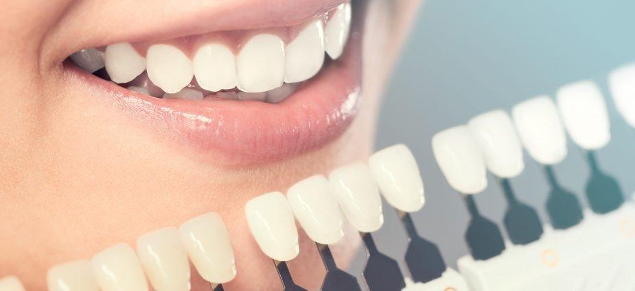 0 2 - دندانپزشکی زیبایی چیست؟
