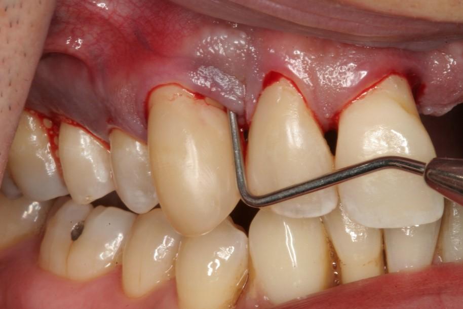 0 - درمان خانگی و دندانپزشکی بیماری های لثه