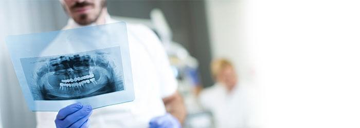 رادیوگرافی در دندانپزشکی