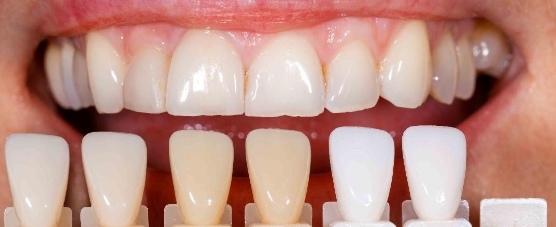 مشاوره دندانپزشکی زیبایی