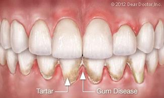 درمان خانگی و دندانپزشکی بیماری های لثه