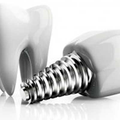 0 - ایمپلنت های دندانی