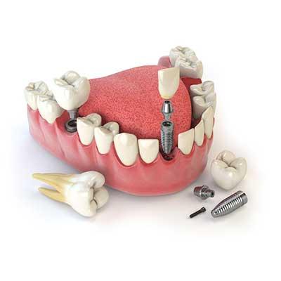 1 1 - پرسش های شما در مورد ایمپلنت دندانی