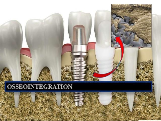 دلایل شکست ایمپلنت های دندانی