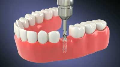 پرسش های شما در مورد ایمپلنت دندانی