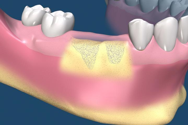 1 1 - پیوند استخوان قبل از کاشت ایمپلنت های دندانی
