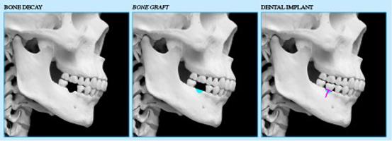 1 - پیوند استخوان برای درمان تحلیل استخوان فک - بخش دوم