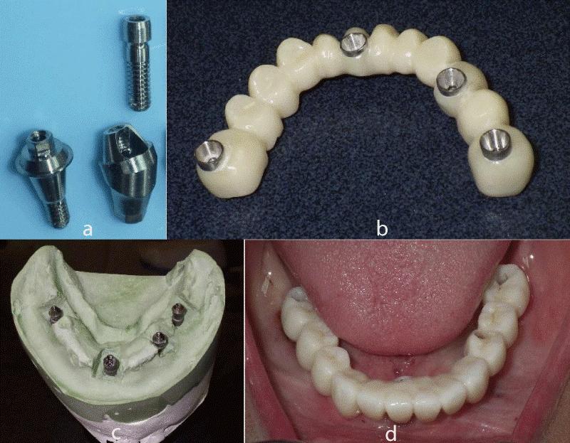 روکش های پیچ شونده و چسب شونده ایمپلنت دندانی – بخش اول