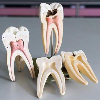 1 1 - مراقبت های بعد از عصب کشی دندان