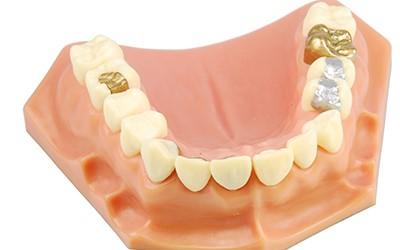 1 2 - کامپوزیت دندانی