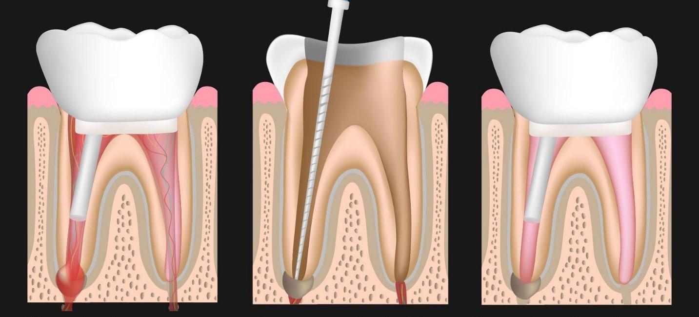 1 3 - درمان مجدد ریشه دندان