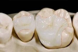 کامپوزیت های دندانی