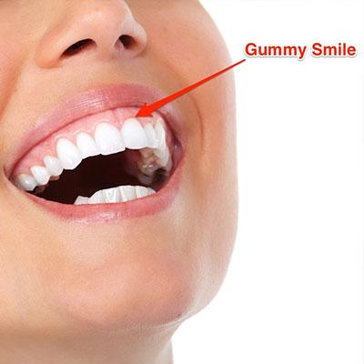 9 1 - لبخند لثه ای یا گامی اسمایل