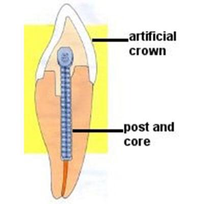 1 - پست و کور برای ترمیم دندان