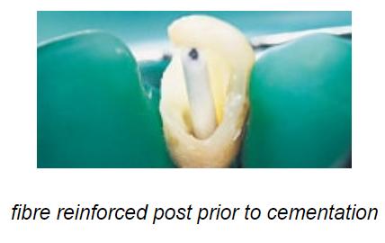 پست و کور برای ترمیم و اصلاح دندان