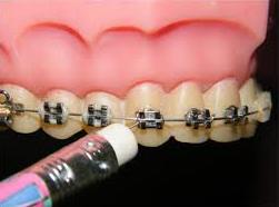 اورژانسی دندانپزشکی