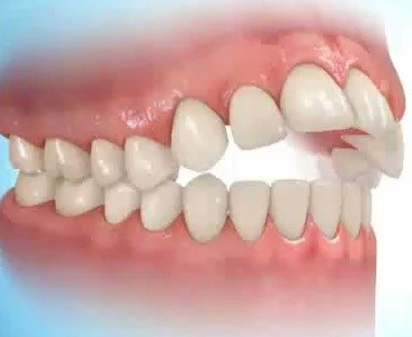 اثر مکیدن انگشت و پستانک روی دندان