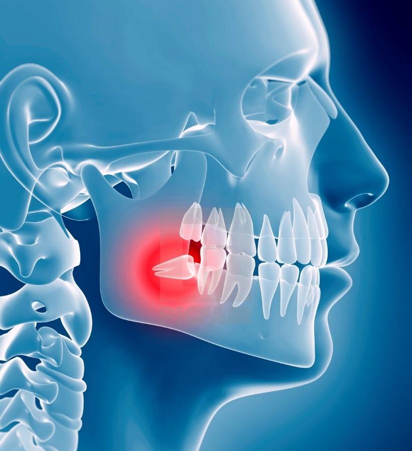 23 - نهفتگی یا در نیامدن دندان عقل