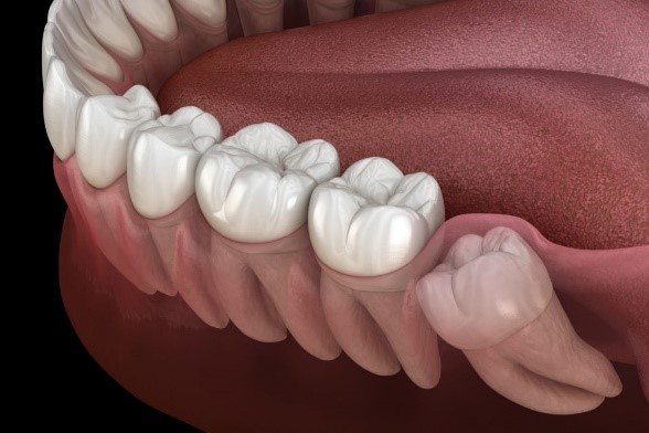نهفتگی یا در نیامدن دندان عقل