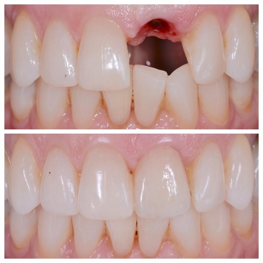 انتخاب نوع روکش دندان