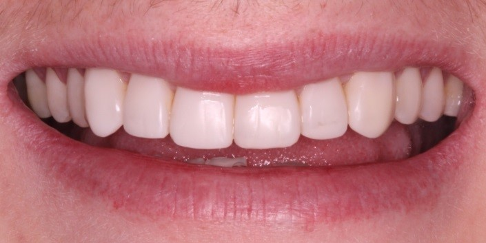 1 - باندینگ دندان؛ روشی موثر برای ترمیم دندان
