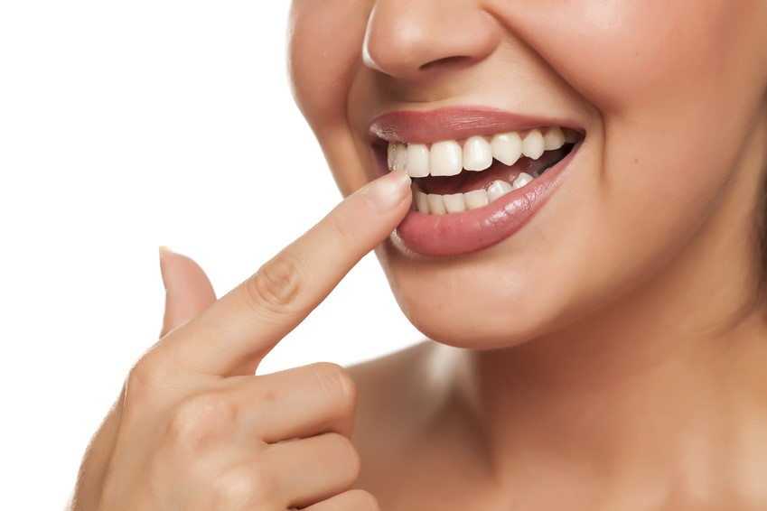 1 - فرم دادن دندان با کانتور یا تراش مینای دندان