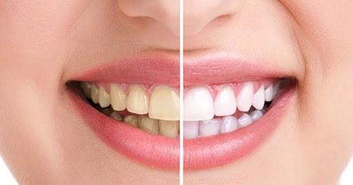16 - آفیس بلیچینگ یا سفید کردن تخصصی دندان در مطب