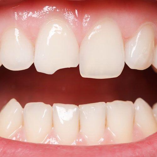 کانتور یا تراش مینای دندان