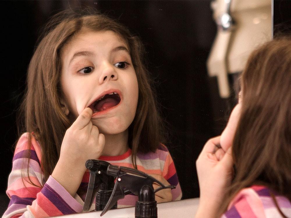آفت دهان در کودکان