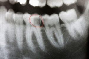 از دست رفتن دندان