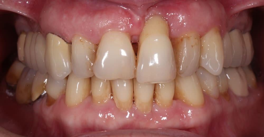 مشکلات دندانی و فشار خون
