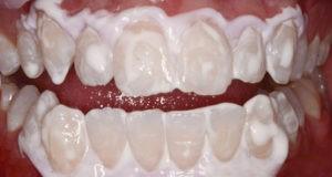 لکه های سفید روی دندان