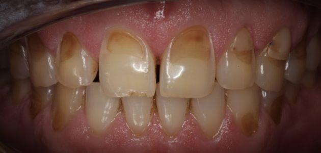 8 - ساییدگی مینای دندان